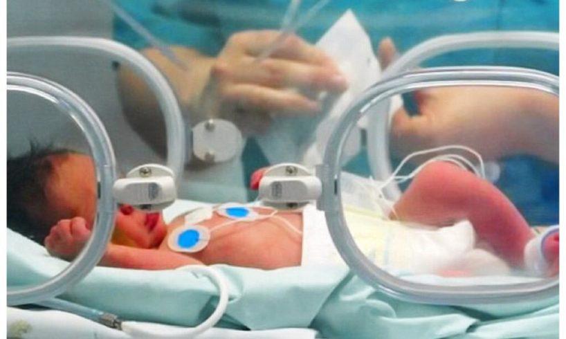 Bronte, bambina con rara malformazione trasferita al 'Bambino Gesù' di Roma: grazie all'intervento dell'ospedale Garibaldi